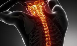 Spinal Surgery Switzerland