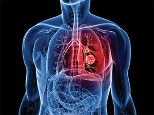 chest surgery Switzerland